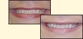 Teeth Whitening in Bethesda, MD with Drs. Dunn and Castro